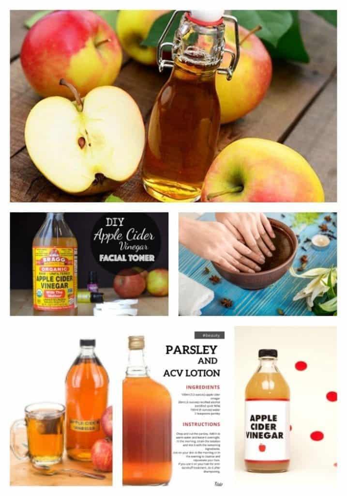 12 Amazing Beauty Benefits of Apple Cider Vinegar 11