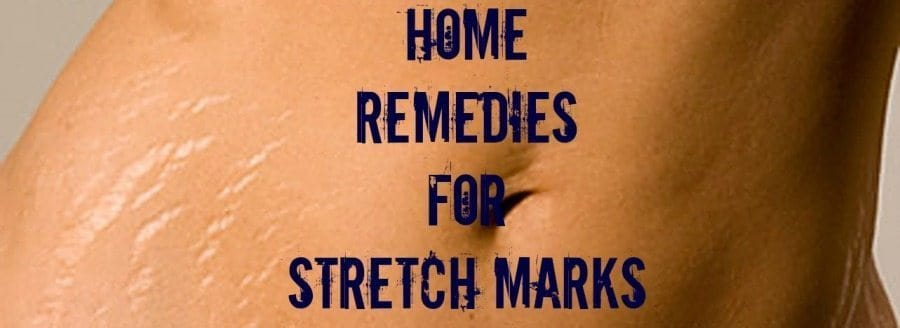 8 simple home remedies for stretch marks