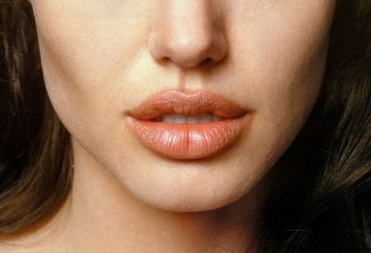 Home Remedies for Swollen Lips