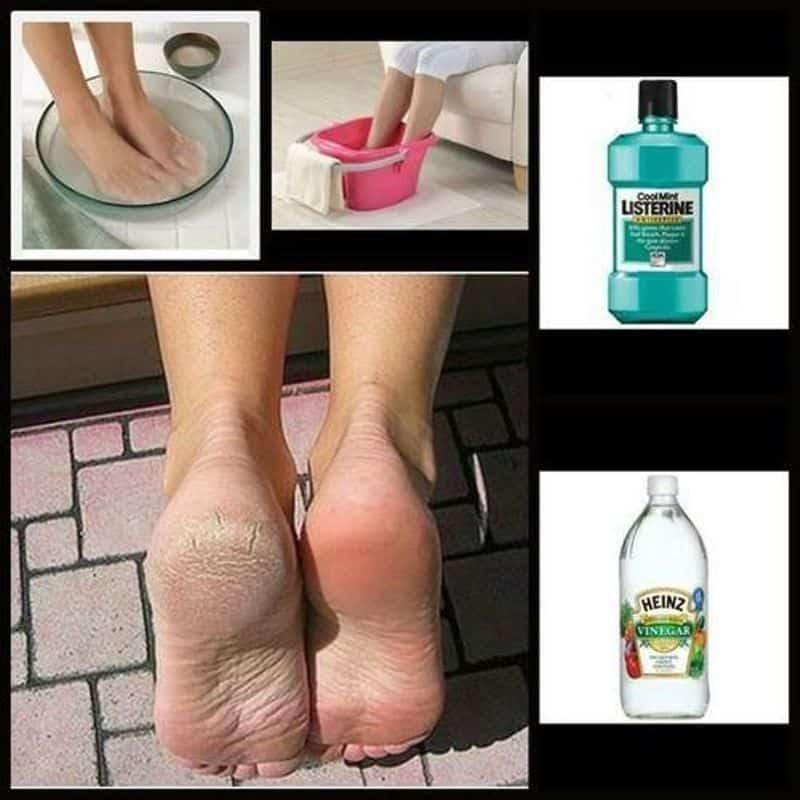 DIY Listerine Foot Soak - Heal Cracked Heels At Home ! 3