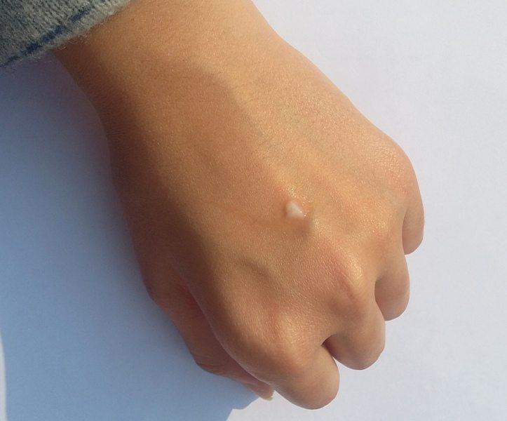 La Roche Posay Effaclar Duo (+) Acne Treatment Cream Review 3