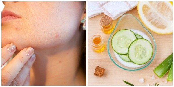 Home Remedies for Cystic Acne Treatment