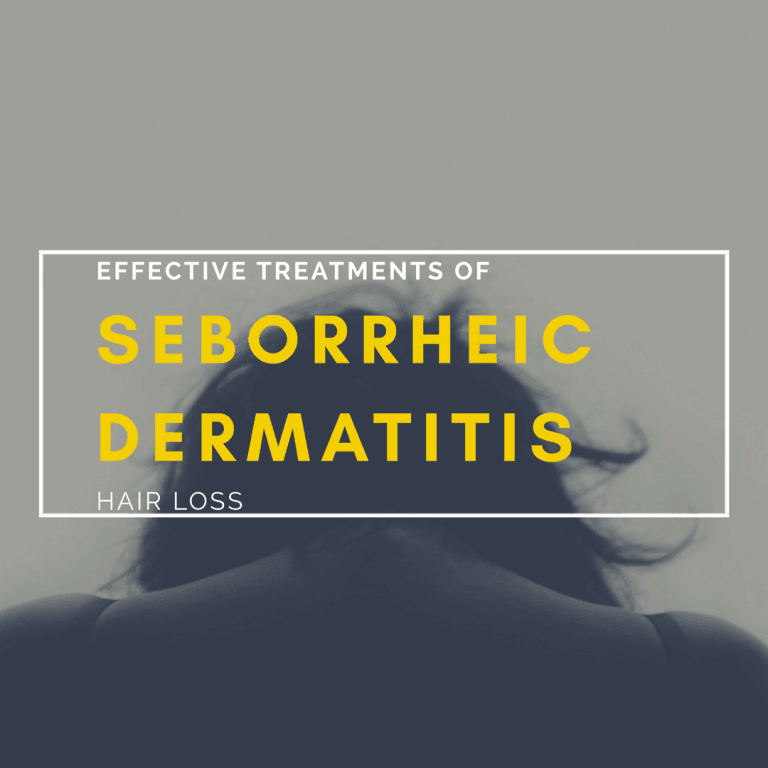 Seborrheic Dermatitis Hair Loss