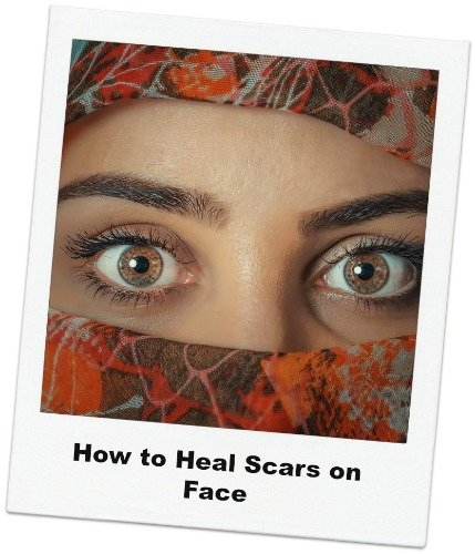 How to Heal Scars on The Face?