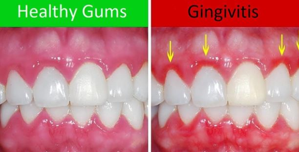 What are Home Remedies of Gingivitis ?
